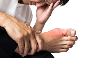 Man with painful and inflamed gout on his foot around the big toe area.