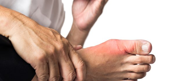 What Causes Gout And How It Can Be Prevented