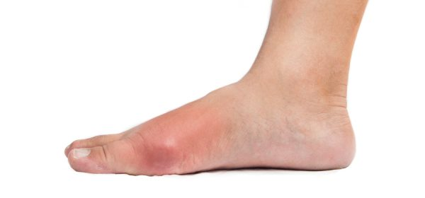 Gout Symptoms And Treatment For A Better Quality Of Life