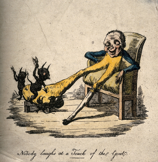 ealth-and-medicine-a-gouty-man-suffering-with-a-painfully-enlarged-foot-presented-by-demons-prodding-it-with-arrows-coloured-etching-1814-wellcome-collection